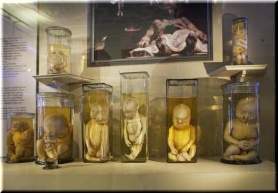 зародыши в Музее анатомии